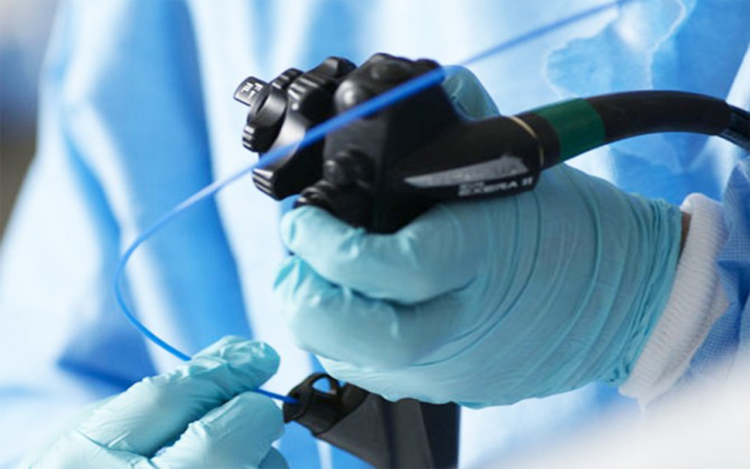 endoskopija